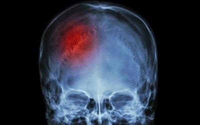 Las lesiones en la zona craneal
